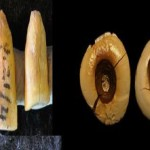 Otturazioni dentali scoperte in Italia - Odontonetwork Genova