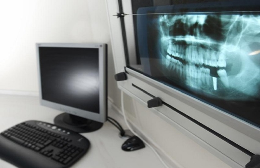 Chirurgia ossea computer guidata in odontoiatria - Odontonetwork Genova
