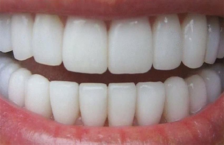 Denti sani fino a 100 anni arrivano i dental coach - Odontonetwork Genova