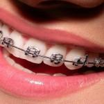 Apparecchio ai denti per figli adolescenti - Odontonetwork
