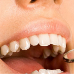 Come sono organizzati i dentisti italiani e quali specialità praticano - Odontonetwork Genova