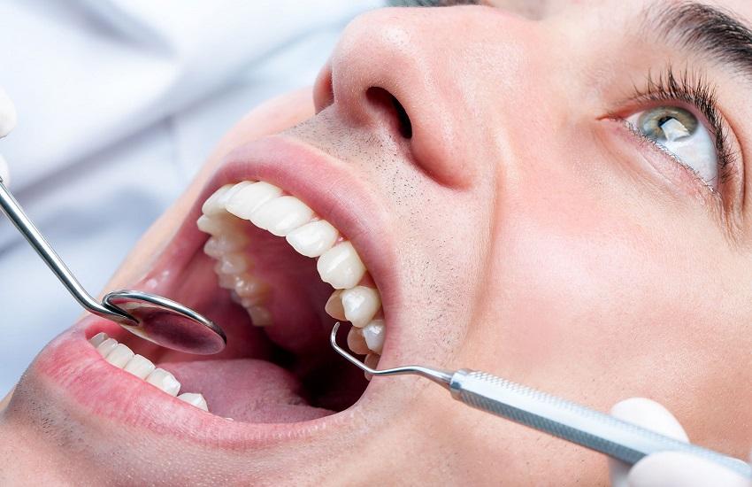 Italiani dal dentista abitudini e costi - Odontonetwork Genova