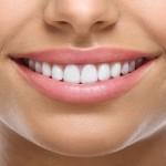 Odontoiatria Estetica - Odontonetwork Genova