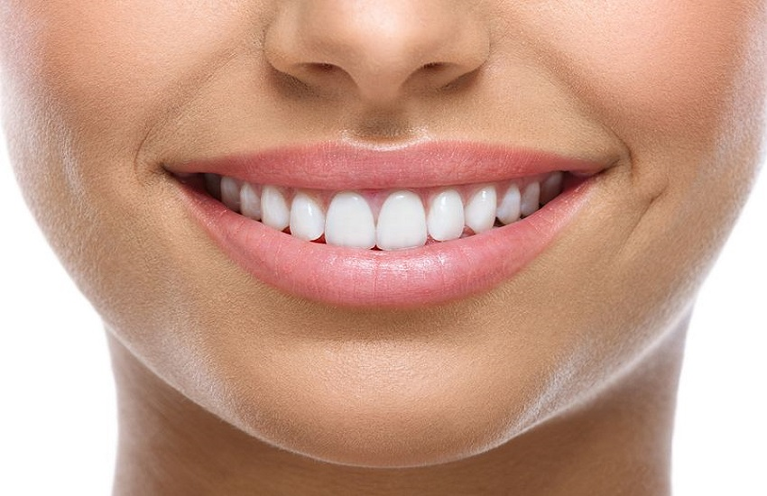 Odontoiatria Estetica - Odontonetwork Genova - Ortodonzia linguale